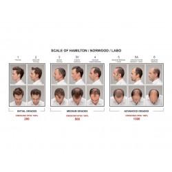Crescina Re-Growth HFSC 500 Man Plaukų augimą skatinanti priemonė vyrams 40amp.
